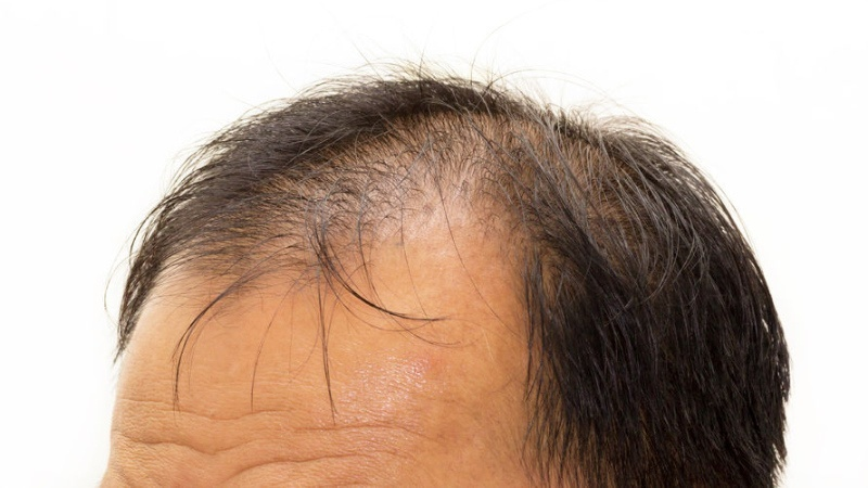 TANA-B Hair Company Wig Cutting and Styling Pic5